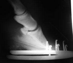 Radiograph of a shod hoof showing a common fault. The heel of the hoof is abnormally high and, as a result, the solar surface of the third phalanx is not parallel to the ground as it should be for proper weight distribution. Increased stress is placed on the sensitive laminae of the wall. This 19 year-old horse had severe laminitis with rotation of the third phalanx and penetration of its tip through the sole. Barefoot management restored the horse to health. © Photo: Claudia Garner